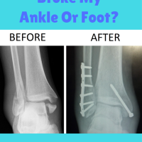 How Do I Know If I Broke My Ankle?